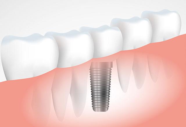 Excelência em Cirurgias Avançadas - Plástica Periodontal e Peri-Implantar