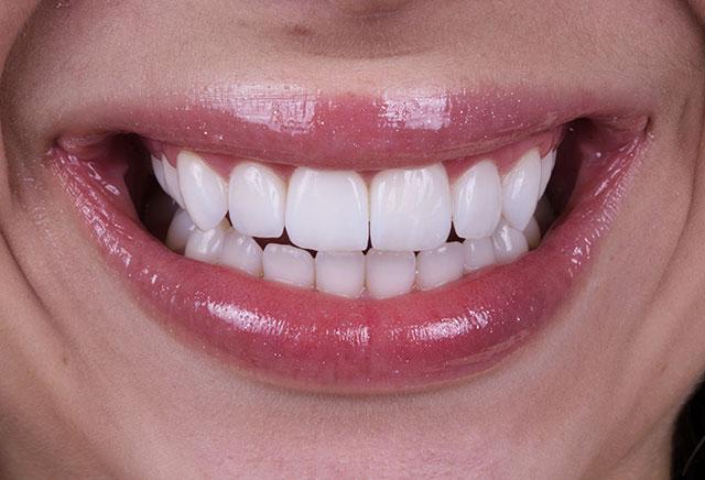 Especialização em Dentística e Prótese Dentária - DUPLA CERTIFICAÇÃO