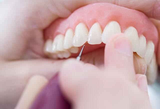 Minirresidência em Resina Composta: Técnica Convencional e Semi-Indireta em Dentes Anteriores e Posteriores